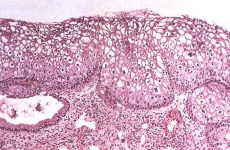 types of hpv cause cancer schistosomiasis united states