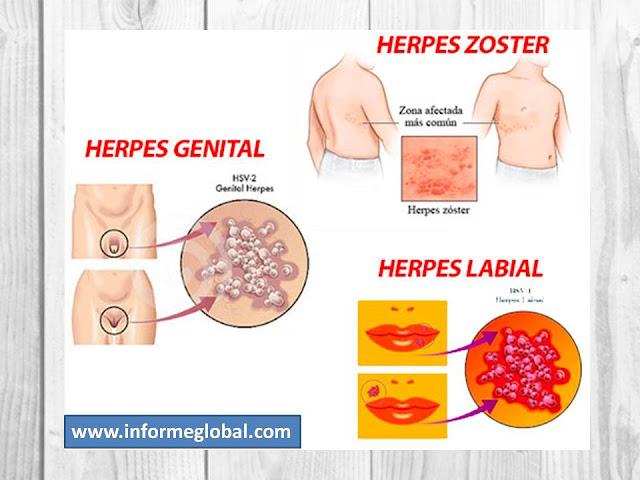 papiloma genital causas)