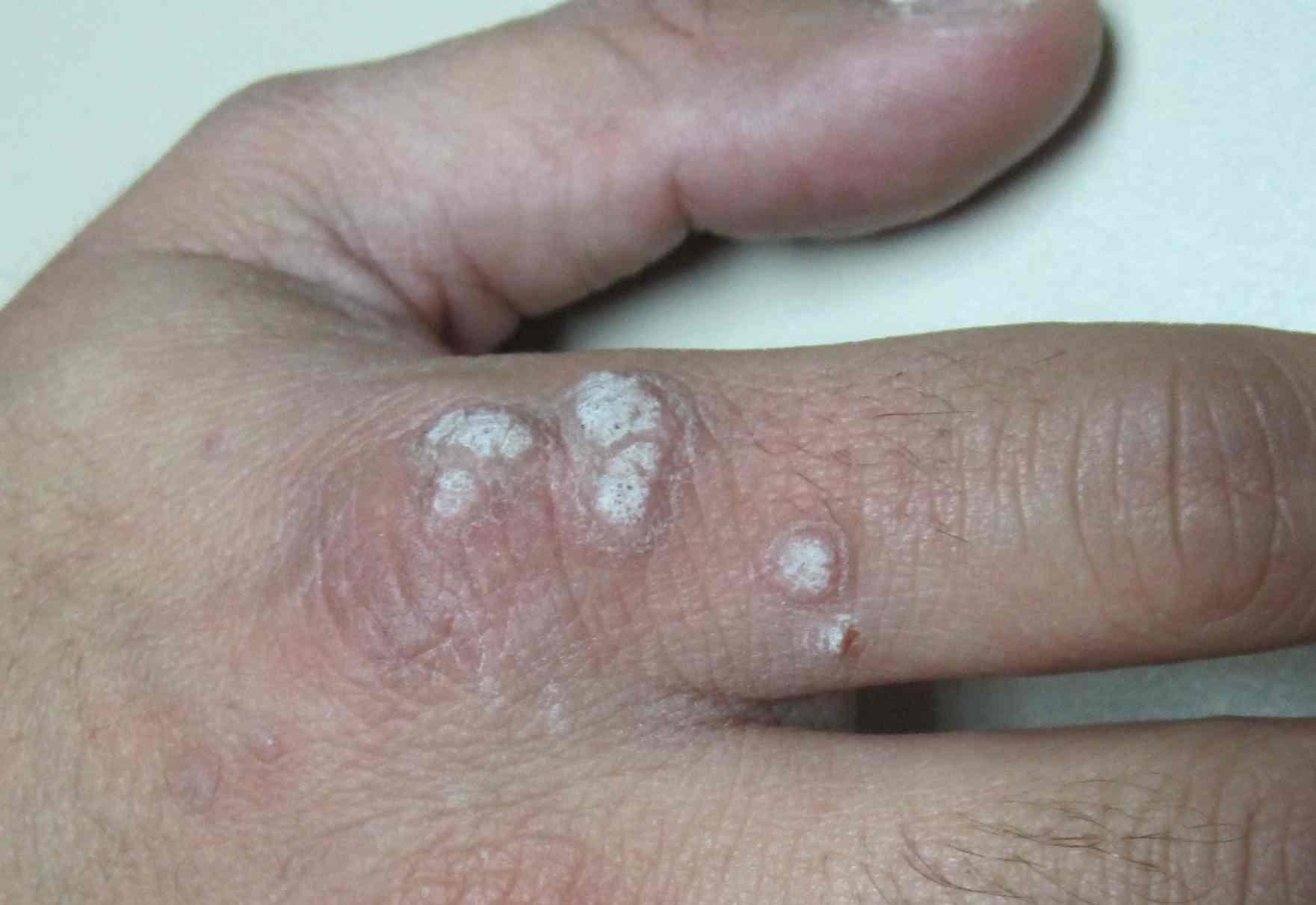 papiloma humano de piel