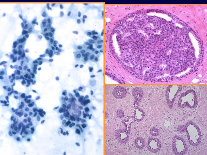 papiloma intraductal con hiperplasia atipica