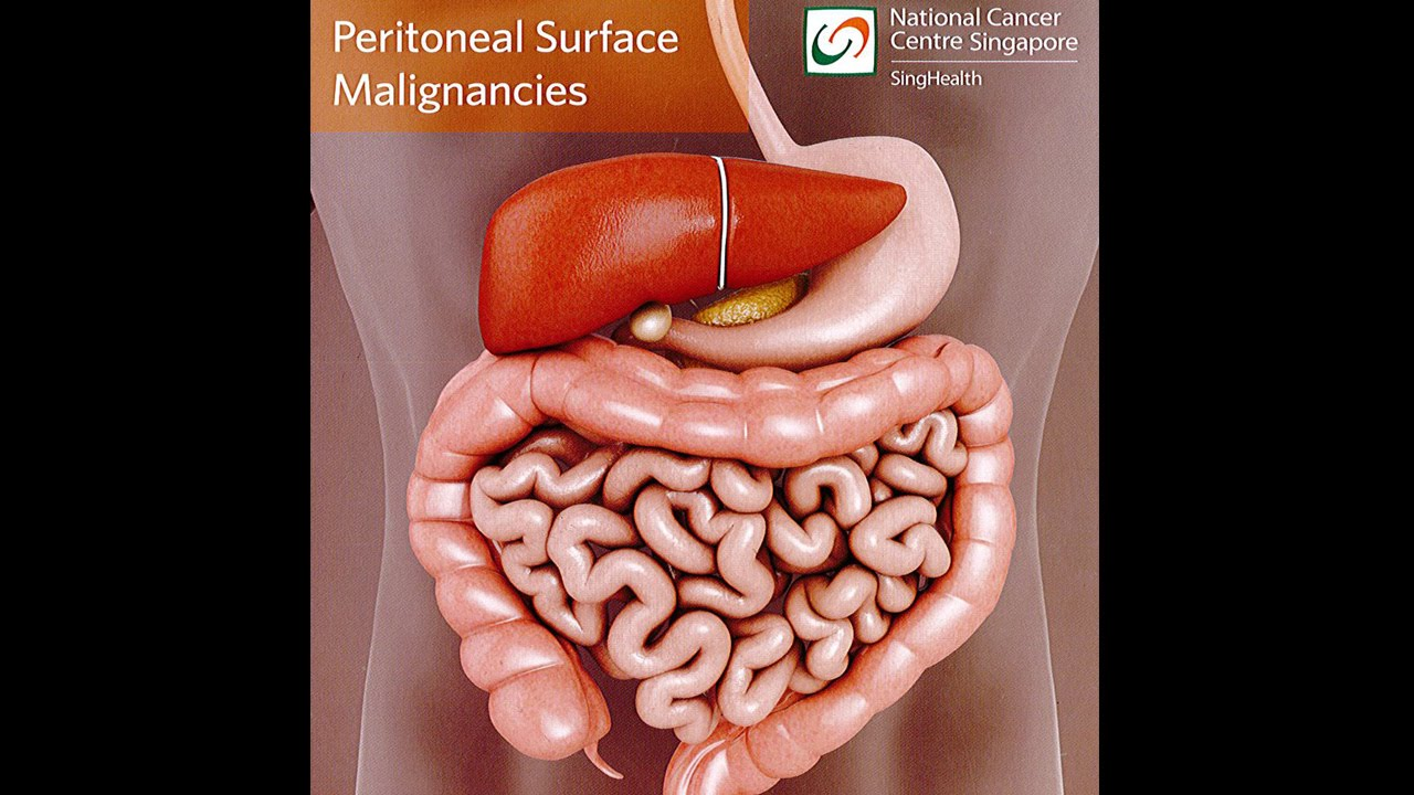 peritoneal cancer blood test