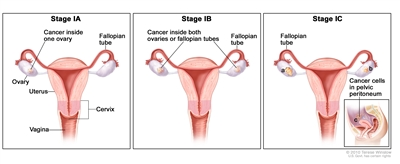 peritoneal cancer final stages