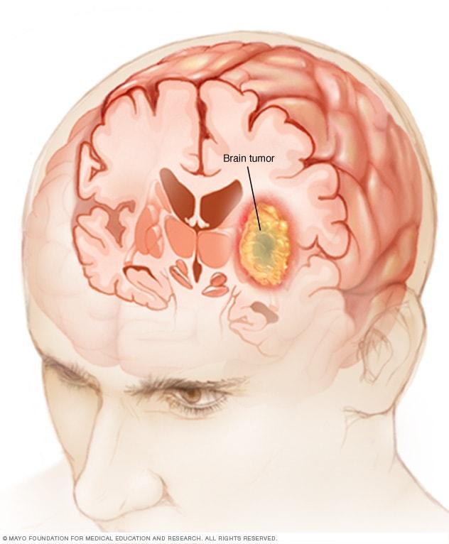 Cancer cerebral