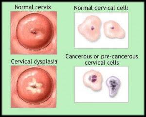 treat hpv warts at home breast cancer benign and malignant tumors