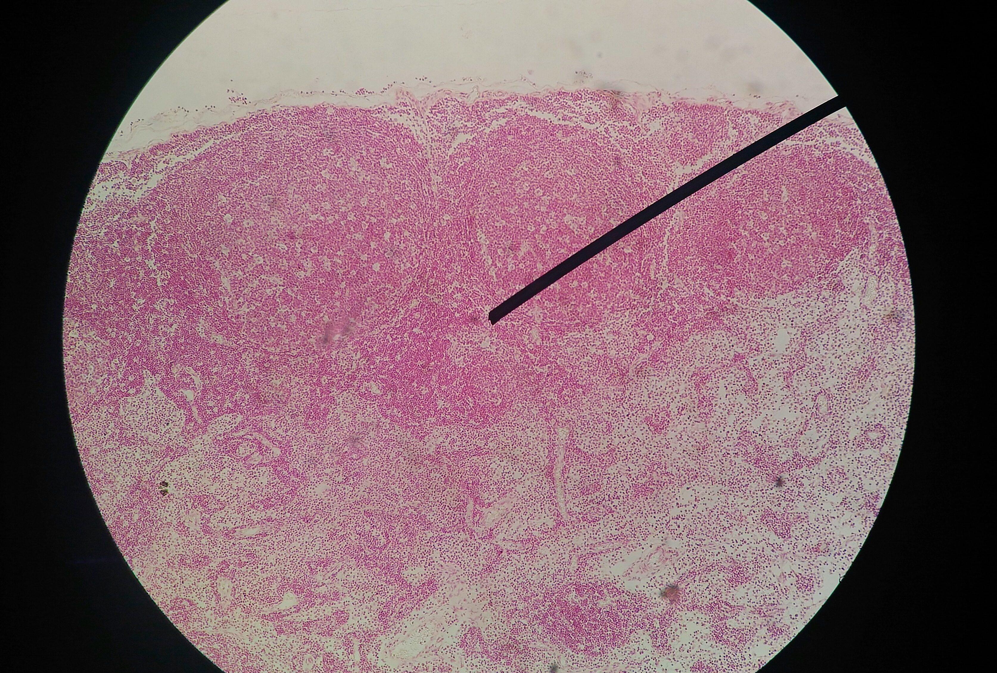 ricerca anticorpi papilloma virus)