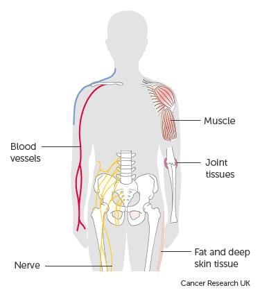 Fotografie Yellow ribbon in hand, symbol Bladder cancer, Sarcoma, Bone canc 163045714