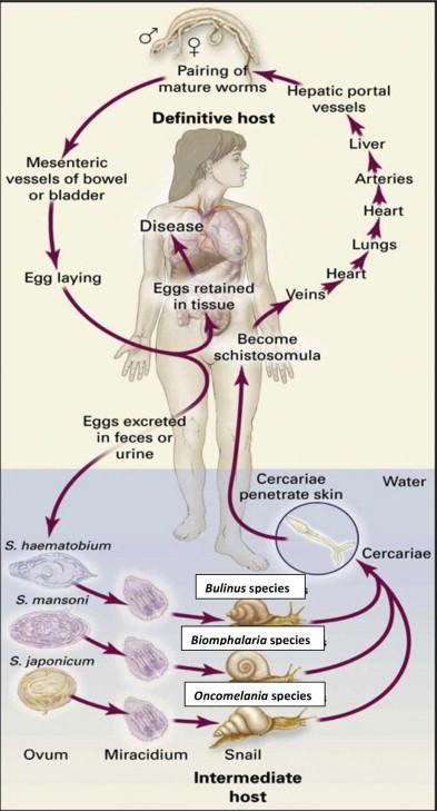 schistosomiasis disease
