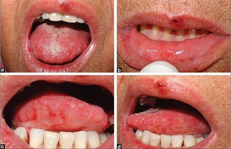 simptome cancer in gura