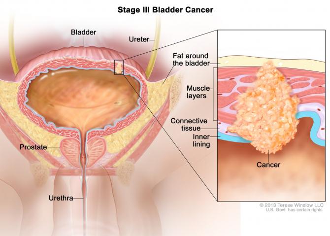 simptome cancer vezica urinara)