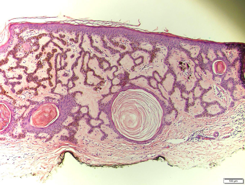 squamous papilloma pathology outlines skin