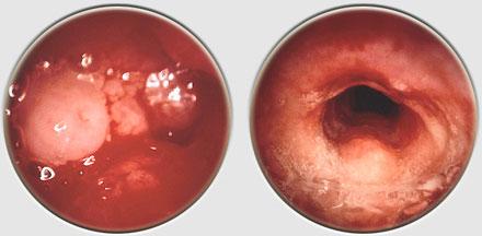 papilloma sotto lingua que es vph sintomas