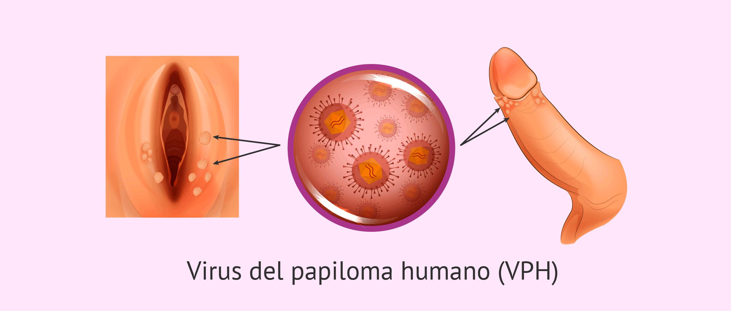 verrugas genitales papiloma)