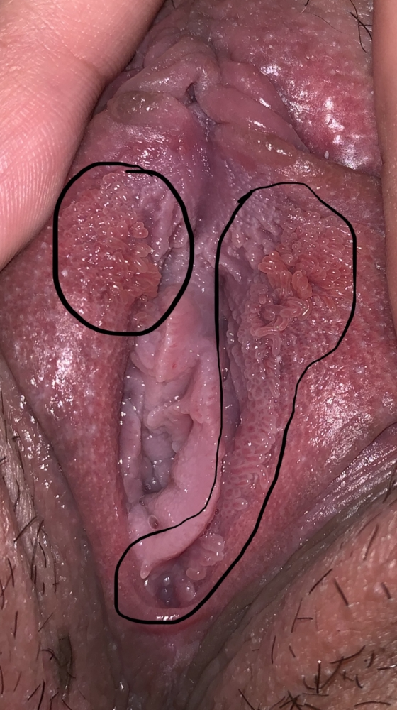 vestibular papillae go away on its own)