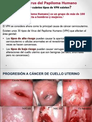 que es virus del papiloma humano pdf