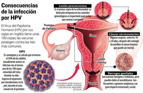 virus del papiloma humano causas y consecuencias)
