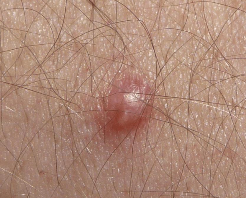 virus del papiloma humano verrugas anales)