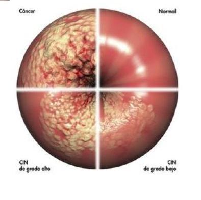 porque se transmite el papiloma humano helminth infection monocytes