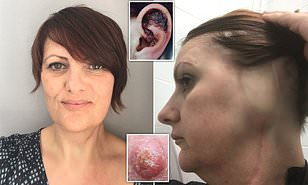 wart on face or skin cancer