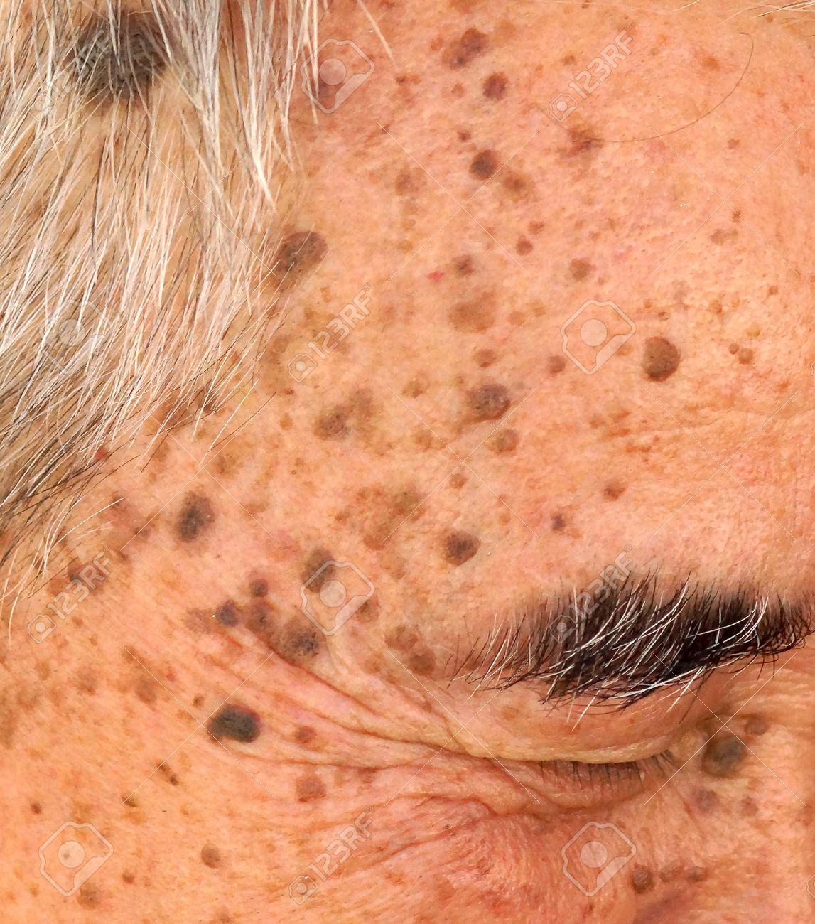 wart on head skin)