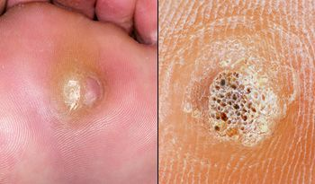 wart treatment on nhs)