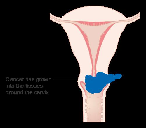 warts and ovarian cancer