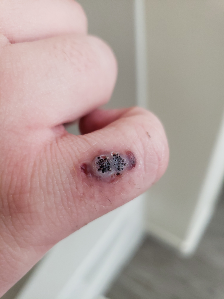 warts on hands cryotherapy