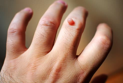 warts on peoples hands)