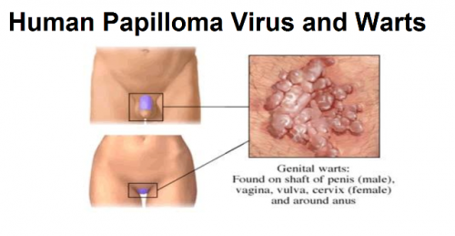 what causes hpv)